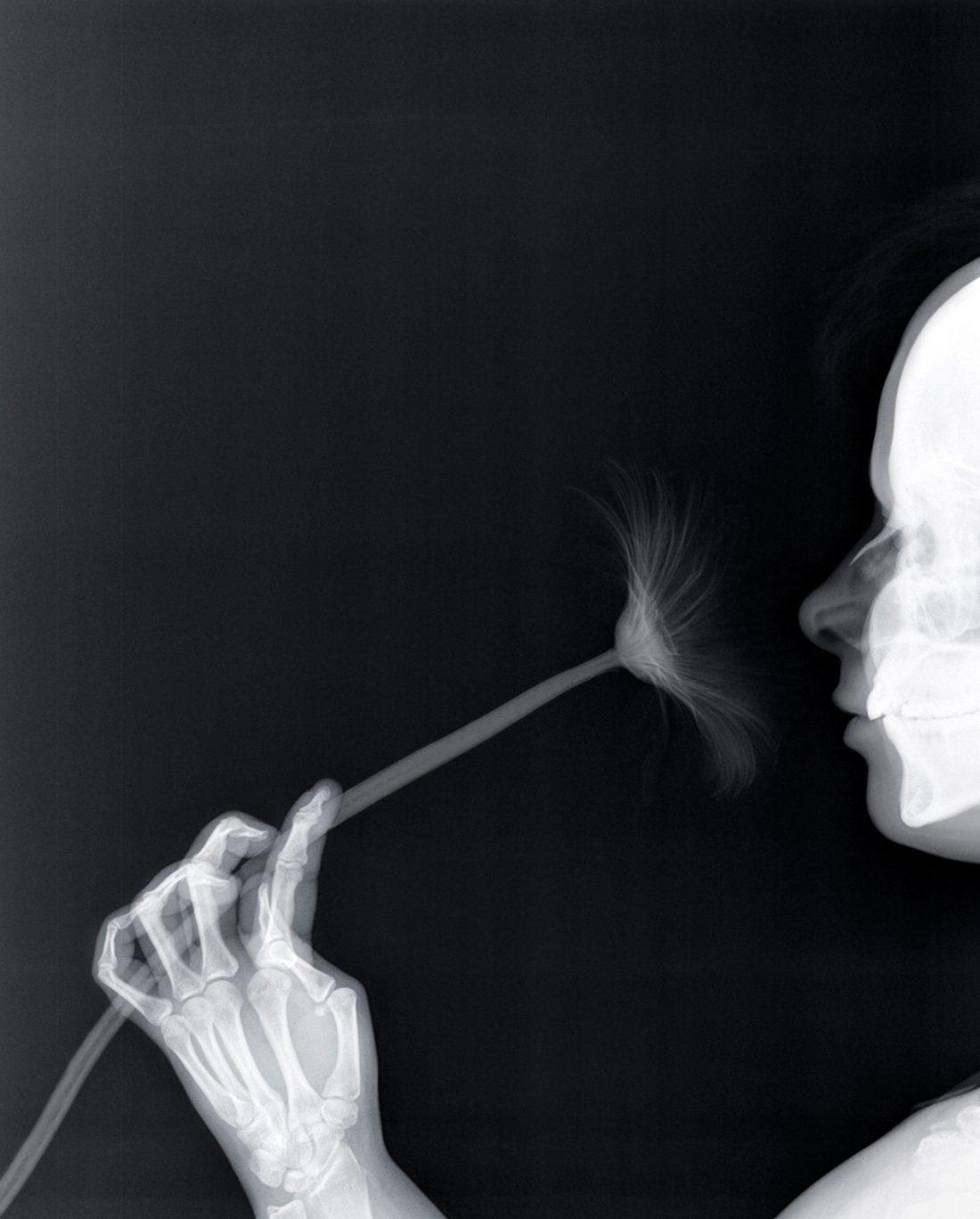 Grotesque & Arabesque (Profile with Gerbera), x-ray, light box, 42,5 x 52,5 cm