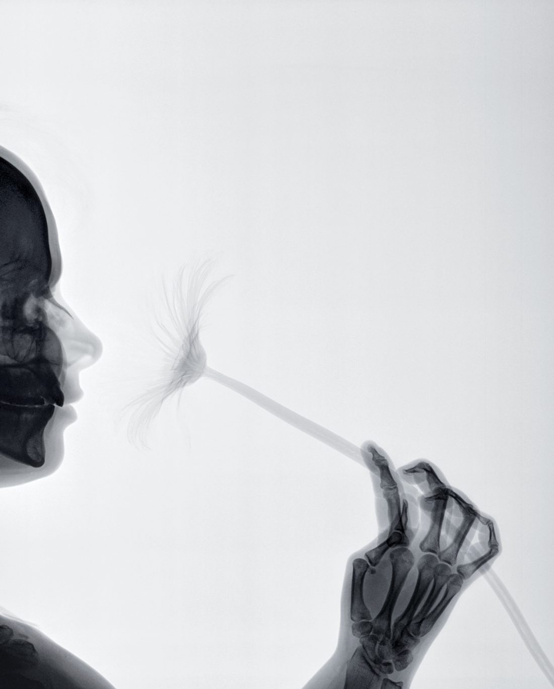 Grotesque & Arabesque (Profile with Gerbera II), x-ray, light box, 42,5 x 52,5 cm