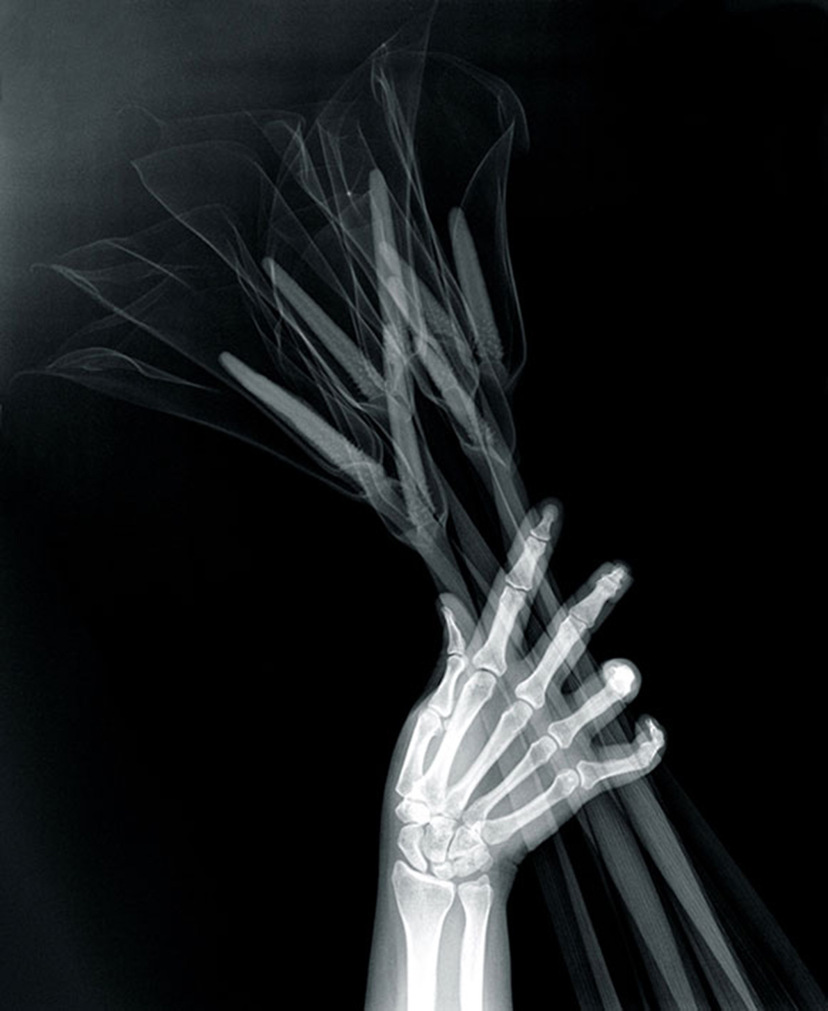 Grotesque & Arabesque (Hand with Callas), lambda duratrans, x-ray, light box, 42,5 x 52,5 cm