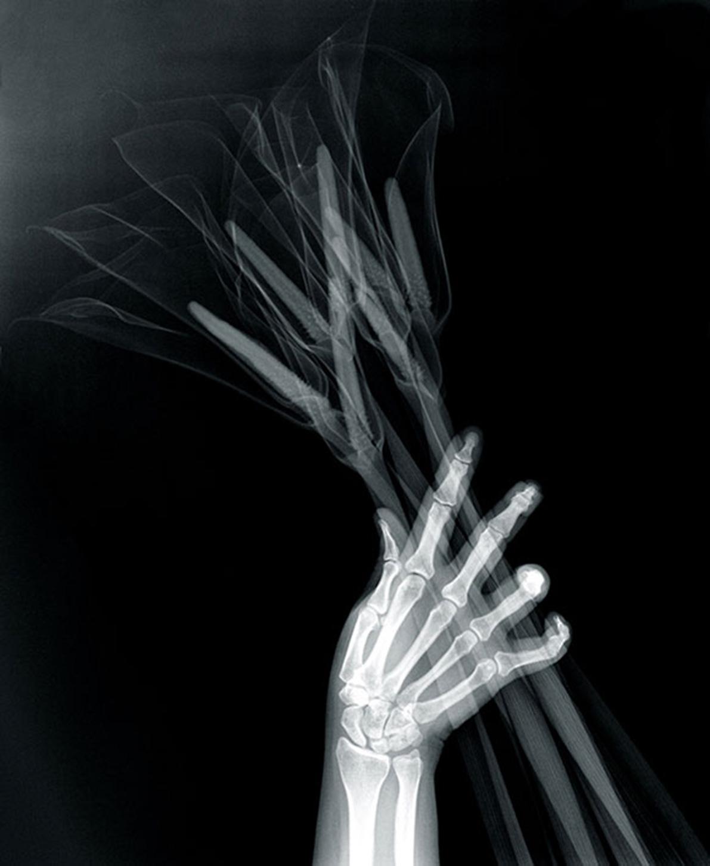 Grotesque & Arabesque (Hand with Callas), lambda duratrans, x-ray, light box, 42,5 x 52,5 cm