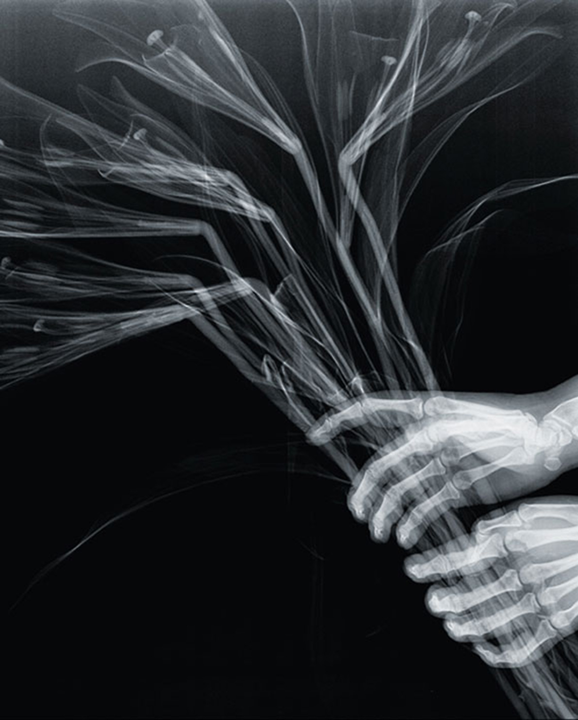 Grotesque & Arabesque (Hands with Lilies), lambda duratrans, x-ray, light box, 42,5 x 52,5 cm