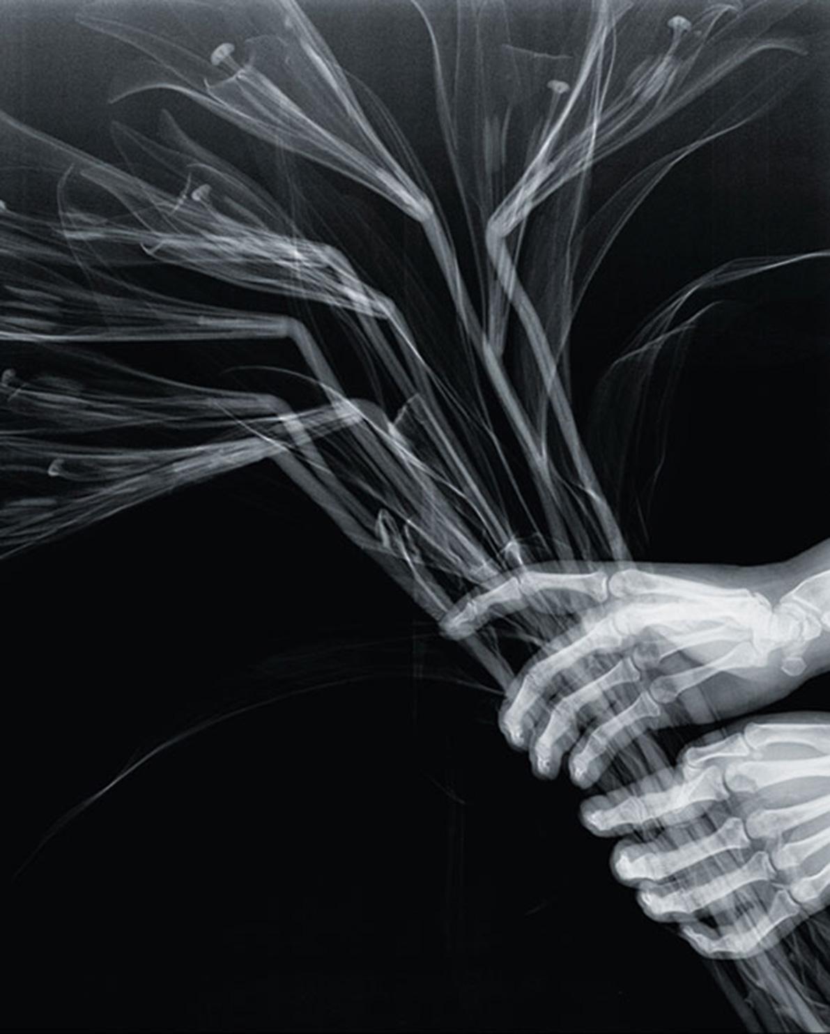 Grotesque & Arabesque (Hands with Lilies), lambda duratrans, x-ray, light box, 42,5 x 52,5 cm